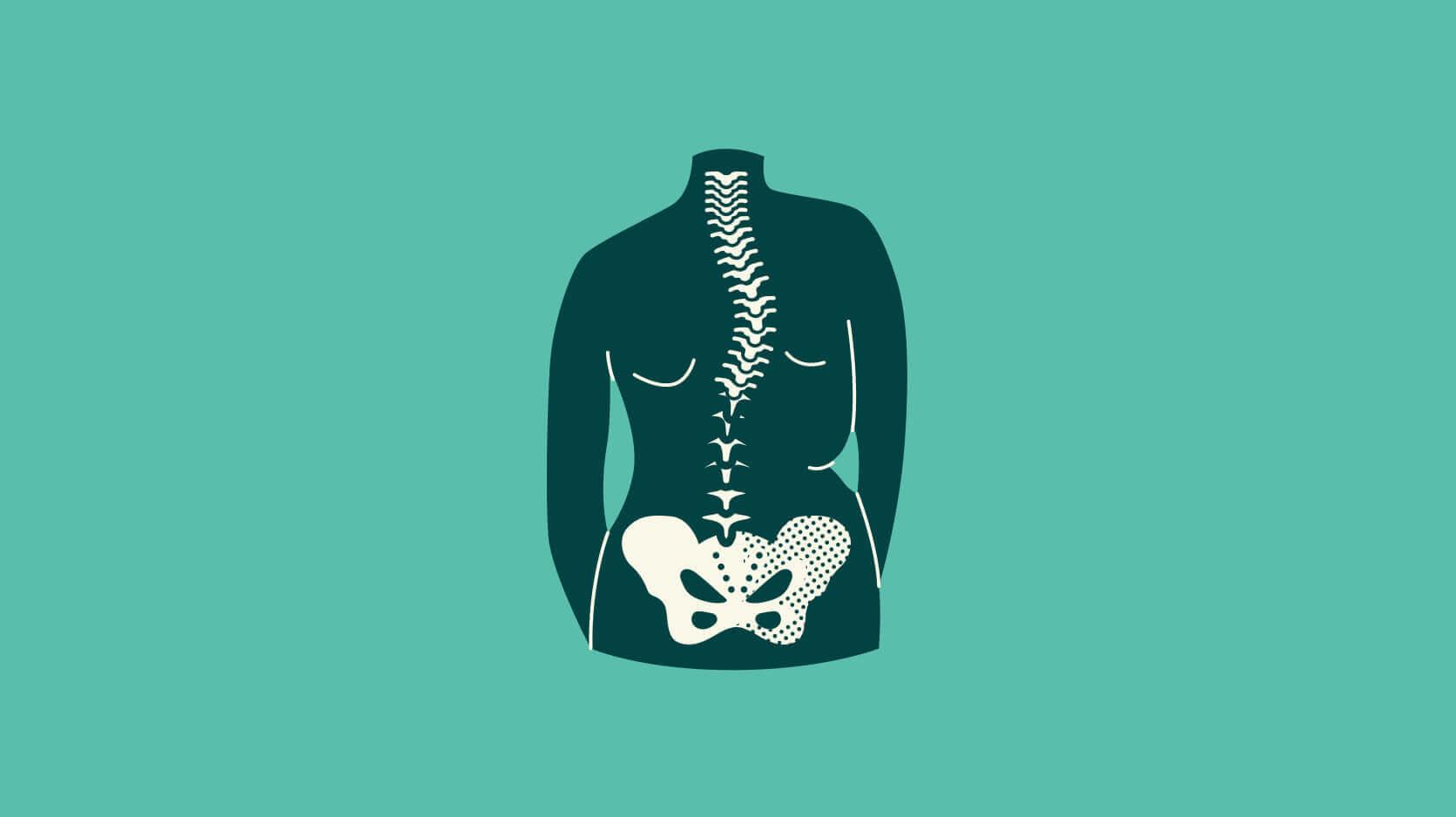 Scoliose-rugklacht-definitie